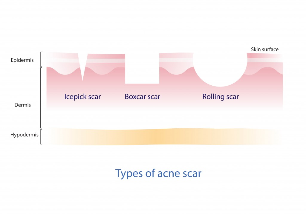 Types of Atrophic Acne Scars